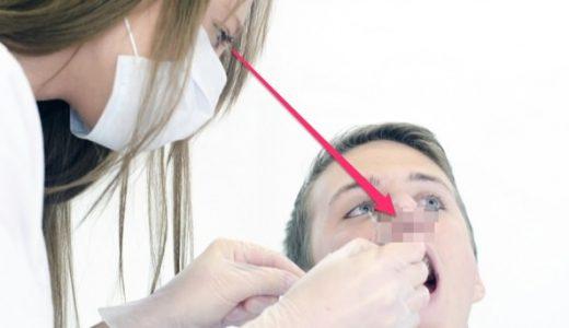 歯医者に行く前は鼻毛を切れ!電動鼻毛カッターの購入を誓った日。